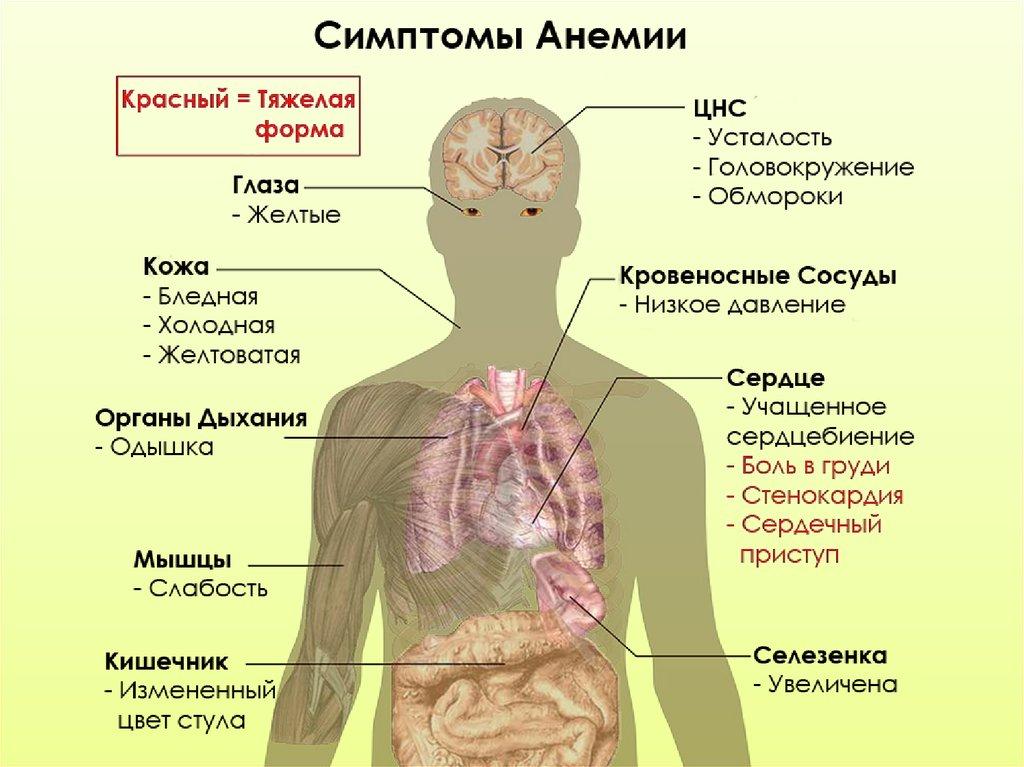 Анемия — эффективное лечение, диета, советы