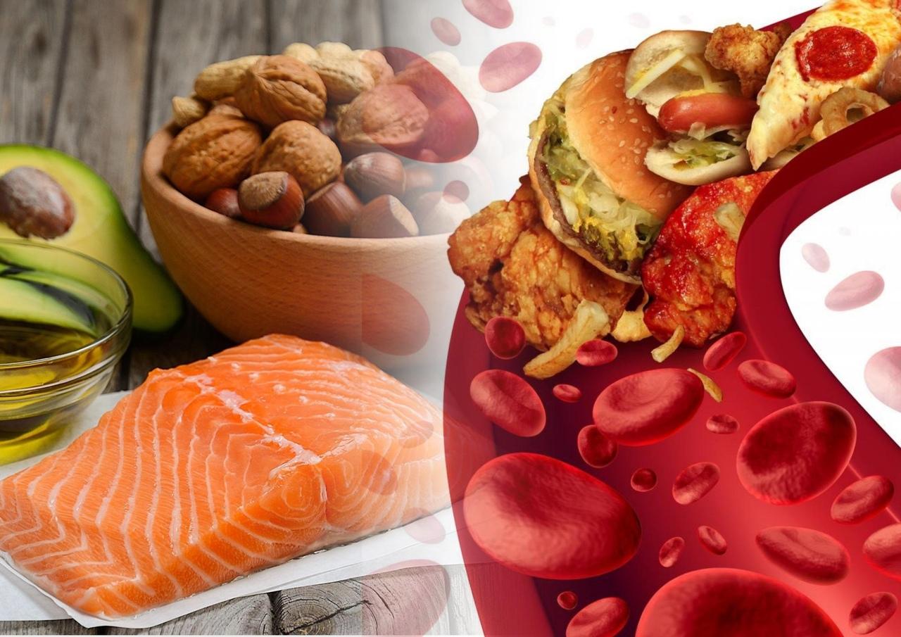 Как снизить уровень холестерина — советы, диета