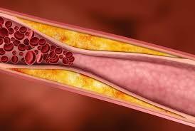 Проверенные временем методы снижения уровня холестерина