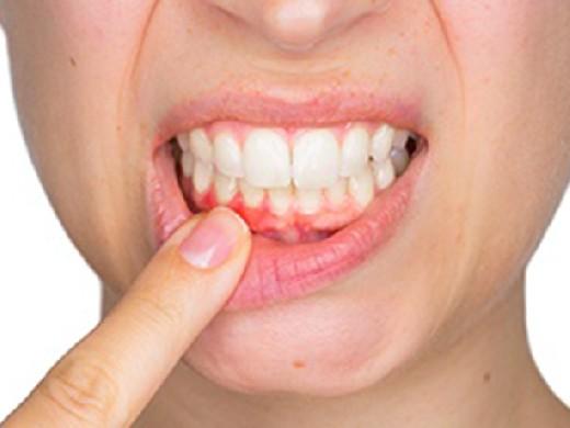 Средства народной медицины при стоматологических заболеваниях