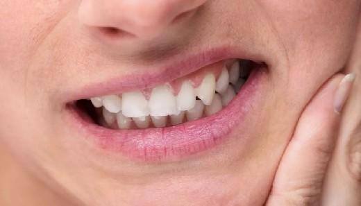 Заболевания, на которые указывает цвет зубного налёта