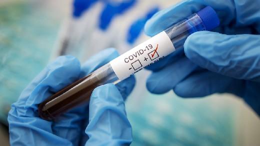 COVID-19 может оказаться сосудистой, а не респираторной болезнью