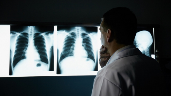 Разрушение легких при коронавирусе оказалось необъяснимым