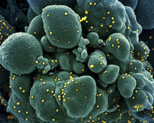 Тип вырабатываемых антител зависит от тяжести течения COVID-19