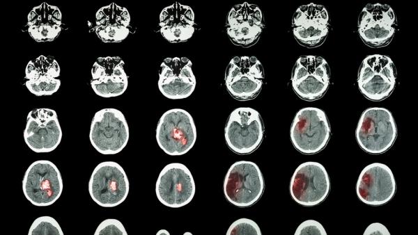 Ученые перечислили пять простых способов снизить риск инсульта