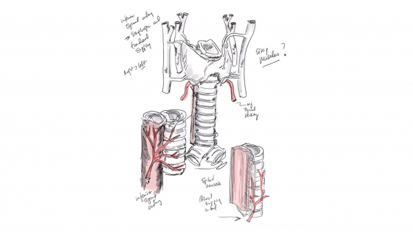 Американские хирурги сообщили об успешной полной пересадке трахеи