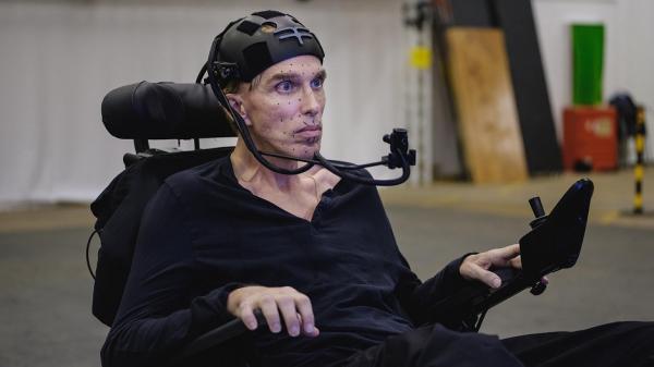 Ученый с заболеванием мышц превратил себя в киборга